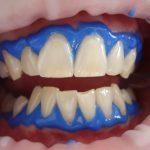 laser-teeth-whitening-716468_1920